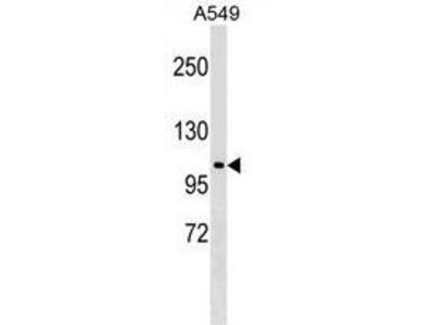 Anti-HECTD3 antibody