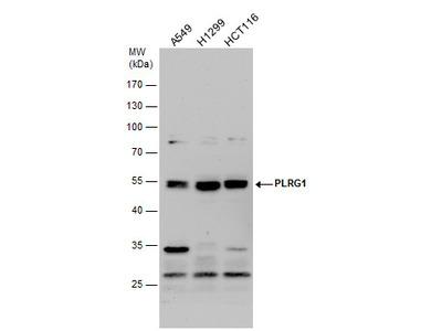 Anti-PLRG1 antibody