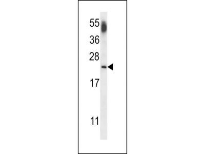 Anti-CNRIP1 antibody