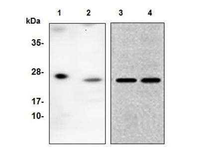Anti-BCMA antibody