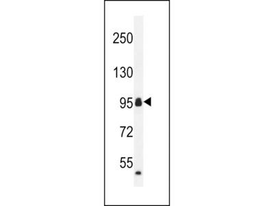 Anti-CCDC110 antibody