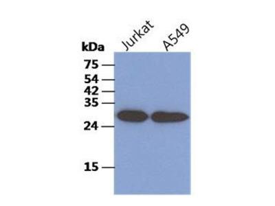 Anti-CKAP1 antibody [AT1F6]
