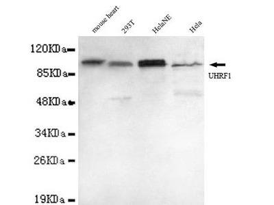 Anti-UHRF1 antibody [1H9-D3-E11]