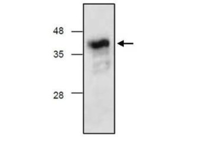 Anti-Complement Factor D antibody