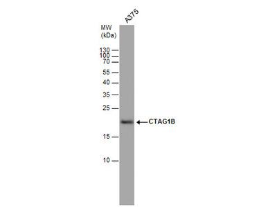 Anti-CTAG1B antibody