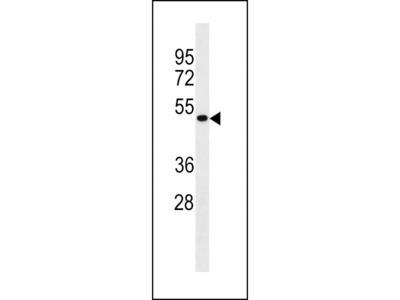 Anti-MCIDAS antibody