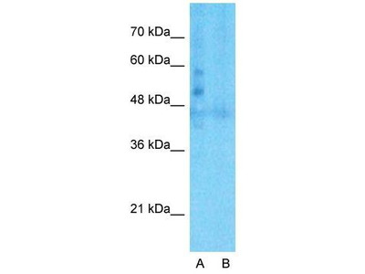Anti-LSR antibody, C-term