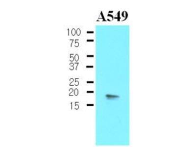 Anti-CPI-17 antibody [4H10]