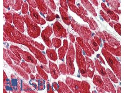 TNNI3 / Cardiac Troponin I Monoclonal Antibody