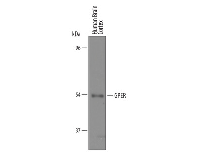 Human GPER / GPR30 Antibody