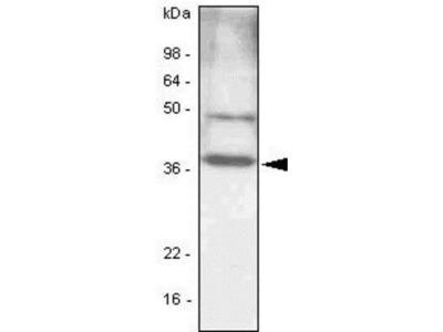 CEBP Beta Antibody (47A1)