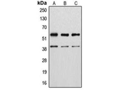 Vimentin (phospho-S56) antibody