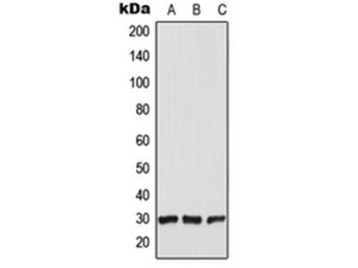 CT47A1 antibody