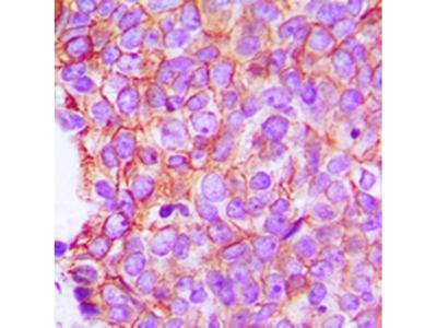 Alpha E-catenin antibody
