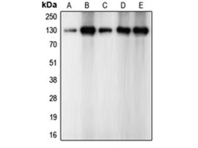 N Cadherin antibody