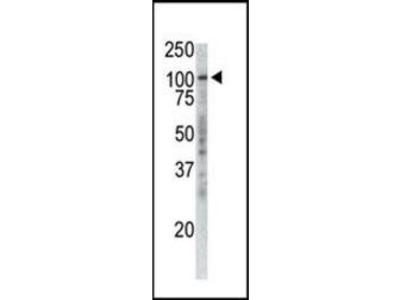 TPX2 antibody