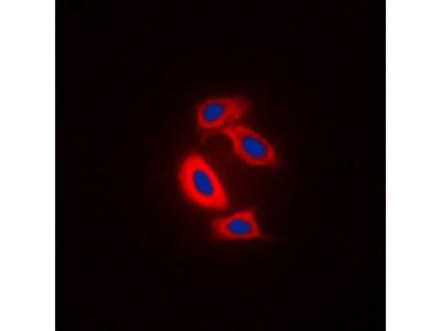 RAB31 antibody