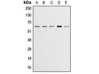 AKT (phospho-Y315) antibody