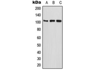 ETAA1 antibody