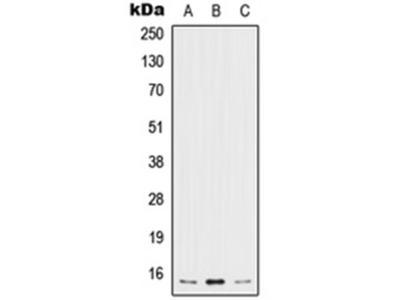 IL5 antibody
