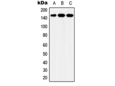 Y2 Antibody Shows Strong Non-Specific Bands