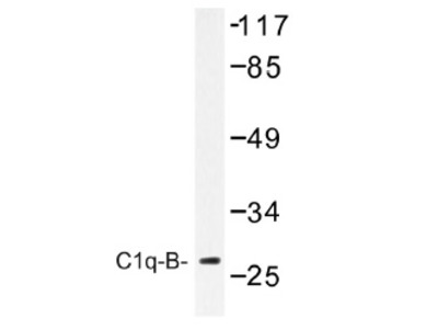 C1QB rabbit polyclonal antibody, Aff - Purified