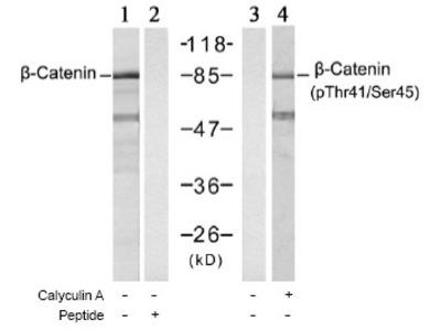 anti Catenin beta-1