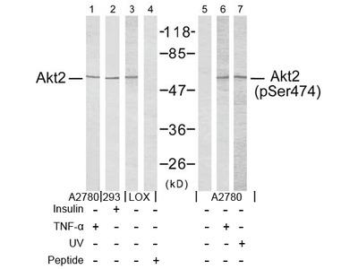 anti AKT2 / PKB beta