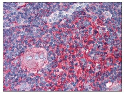 anti Beta-2-microglobulin