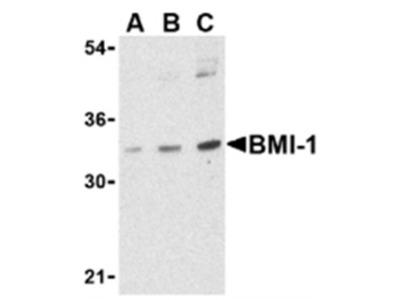 Bmi1 (COMMD3-BMI1) rabbit polyclonal antibody, Purified