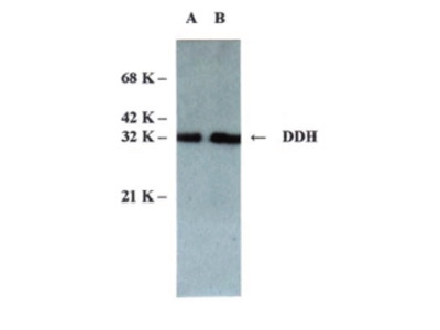 anti AKR1C2 / DDH2