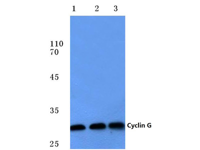 anti Cyclin G1