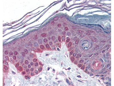 anti Cyclin T1
