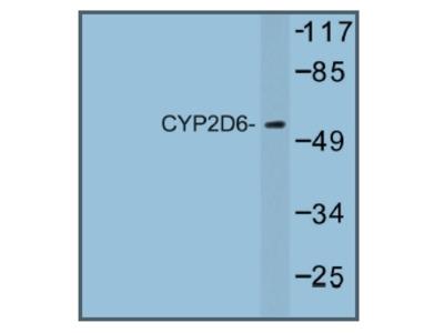 anti CYP2D6