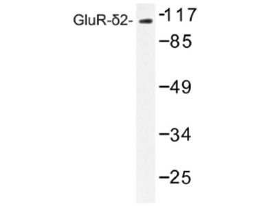anti Glutamate receptor delta-2