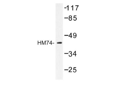 anti Nicotinic acid receptor 2