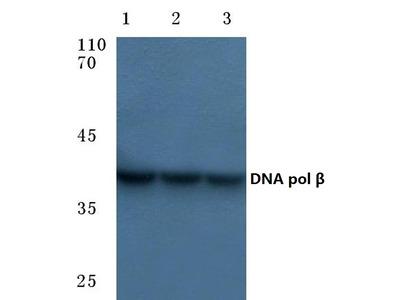 Anti-DNA Antibody Products from OriGene Technologies