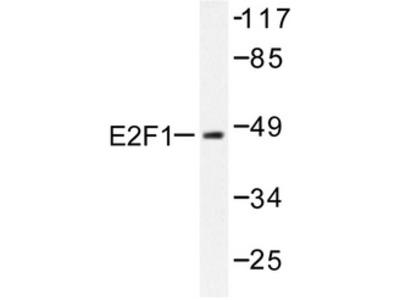 anti E2F1