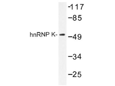 anti hnRNP-K / HNRNPK