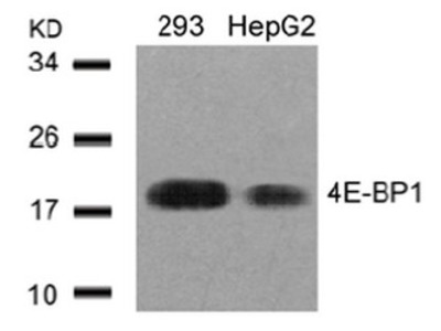 anti EIF4EBP1 / 4E-BP1