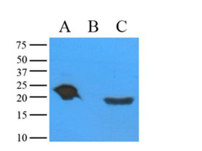 anti Alpha-crystallin A chain / CRYA1