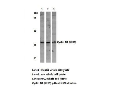 anti Cyclin D1
