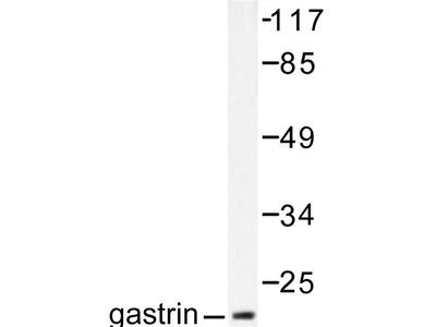 anti Gastrin