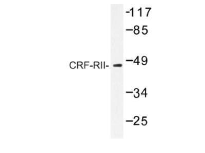 anti CRHR2