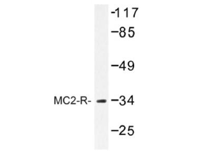 anti MC2-R