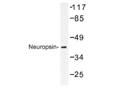 anti Neuroserpin / SERPINI1