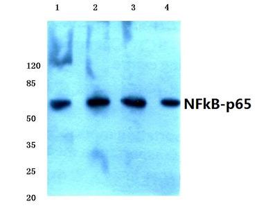 anti RELA / NF-kB p65
