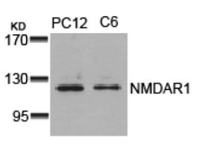 anti NMDA Receptor 1