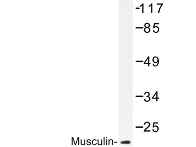 anti Musculin