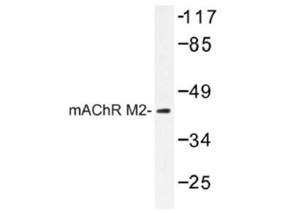 anti Muscarinic acetylcholine receptor M2